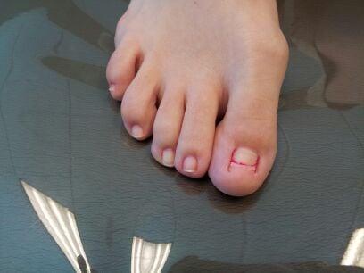 Keryflex toenail restoration before yelp for Acrylic toe nails salon