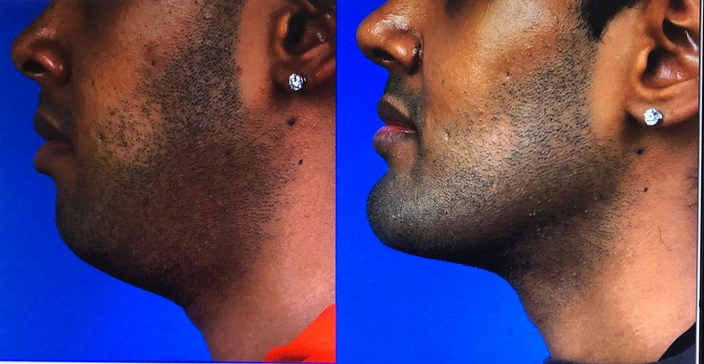 Submental liposuction, chin implant, Necktite and Buccal fat