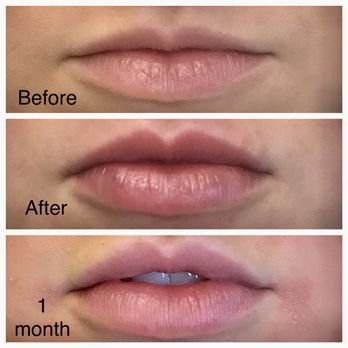 Lip filler with Revanesse Versa  Cost $425/syringe - Yelp