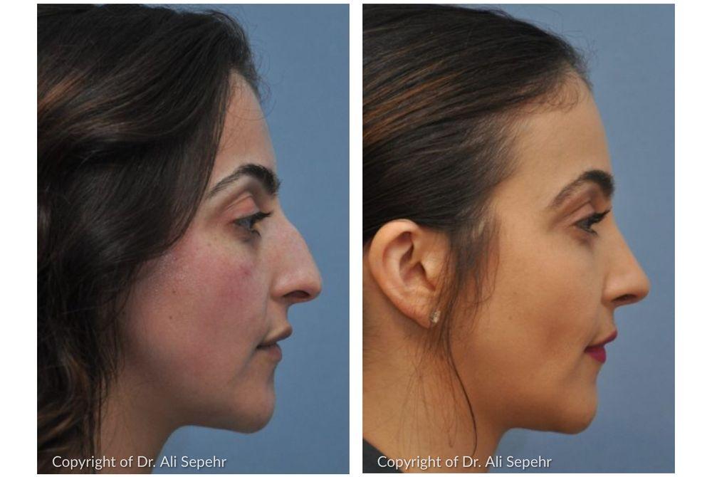 Ali Sepehr, MD - OC Facial Plastic Surgery