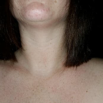 Photo Of Glamour Addict Wantagh Ny United States Uneven Frontal View