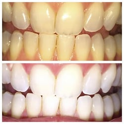 Photo Of Davinci Teeth Whitening Santa Rosa Ca United States