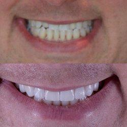 Sunset Dental Studio - 58 Photos & 130 Reviews - General Dentistry