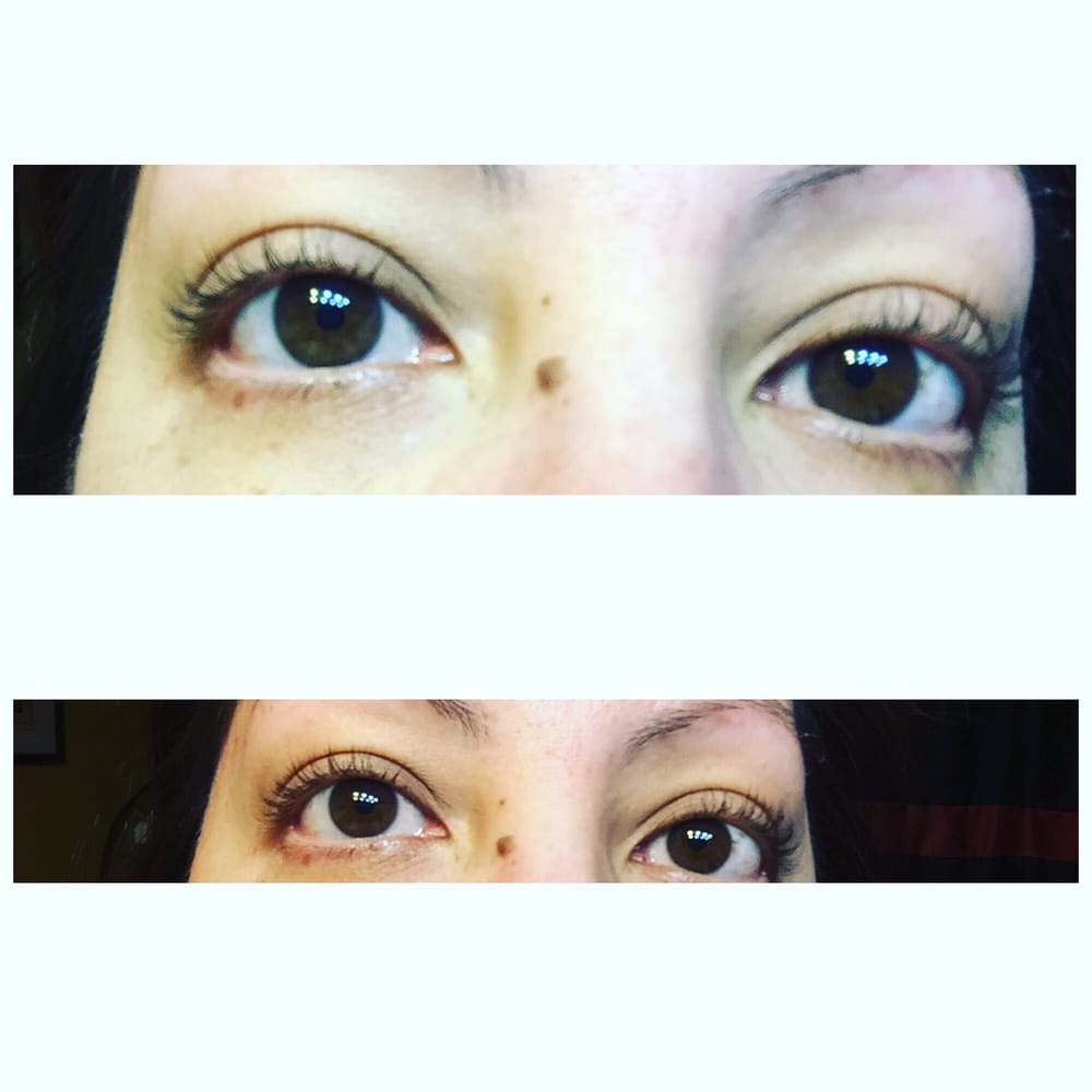 Revive Skin Therapy - 17 Photos - Waxing - 420 E Round Grove Rd ...