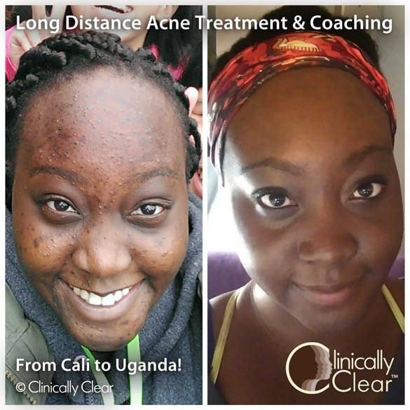 Long Distance Acne Client Who Uses Our Products In Uganda