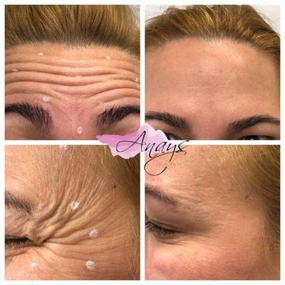 Anays Skin Care