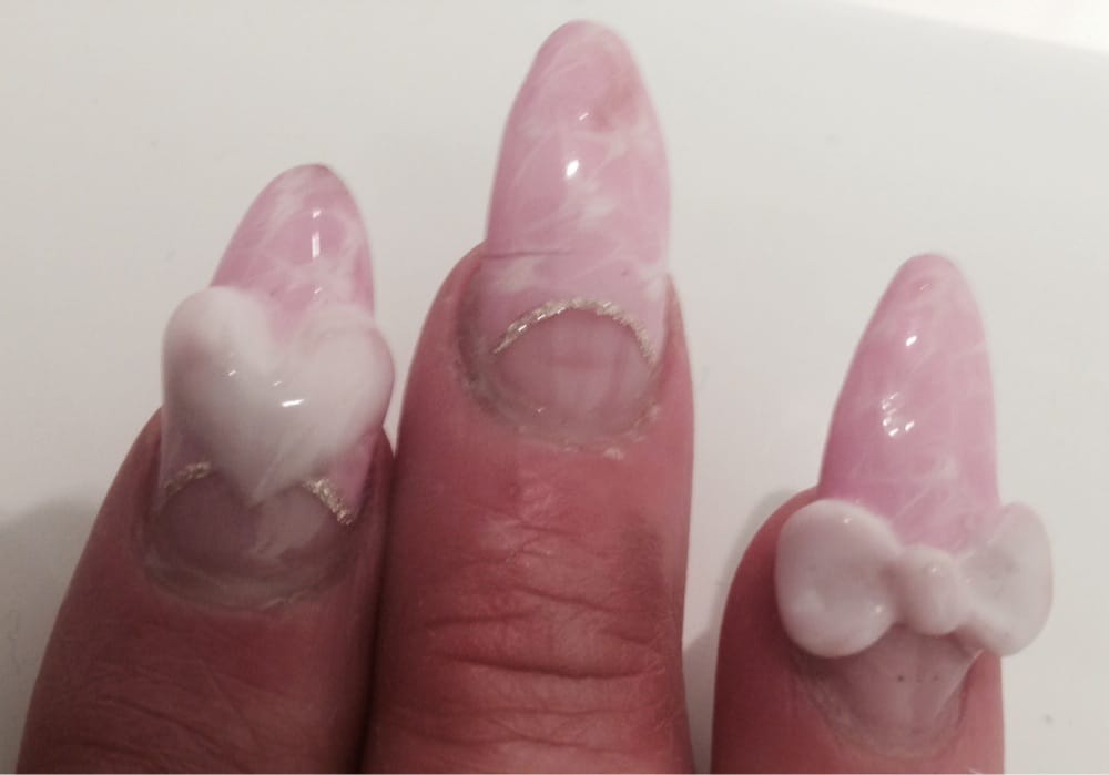 Cracked middle nail that painfully broke off a week after getting ...