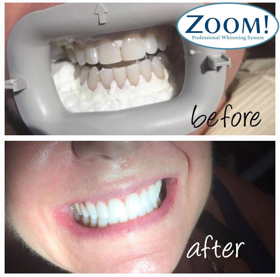 Real Teeth Whitening Results From City Dental We Have The 2017 1