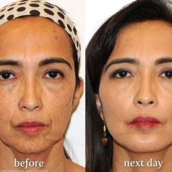 skin vein center 46 photos dermatologists 32669 warren rd garden city mi phone