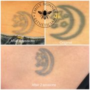 Invisible Ink Tattoo Removers - 19 Photos & 15 Reviews - Tattoo ...