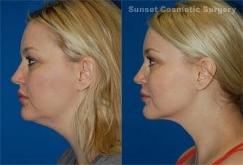 Dr svehlak 44 year old patient neck jaw line and jowls 9 photos for steven svehlak md facs ccuart Image collections