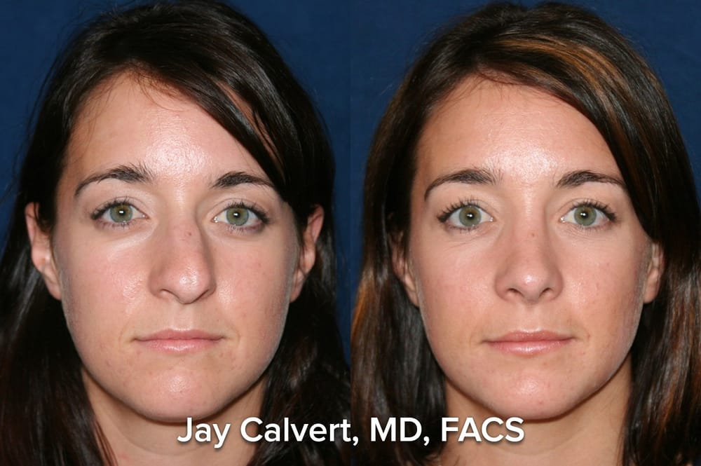 dr  jay calvert rhinoplasty for crooked nose  this primary