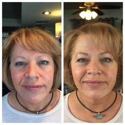 Mens facial skin treatment sacramento