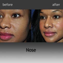 Cosmetic facial surgery fetch site info