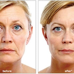 Liquid Facelift Center - 2019 All You Need to Know BEFORE