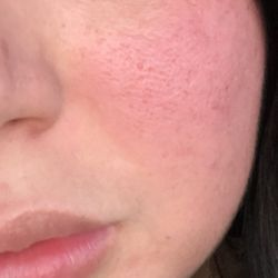 Right! facial and acne opinion