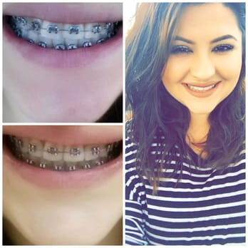 straight teeth dating Take impressions, order your invisible aligners online & get straight teeth in  months see if you're a candidate for our affordable braces alternative now.