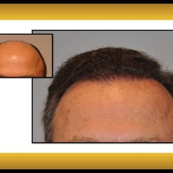 Fallon Hair Restoration Hair Loss Centers 9735 Sw Shady Ln