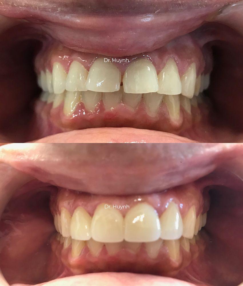 Eastport Dental: 1905 E Mckellips Rd, Mesa, AZ
