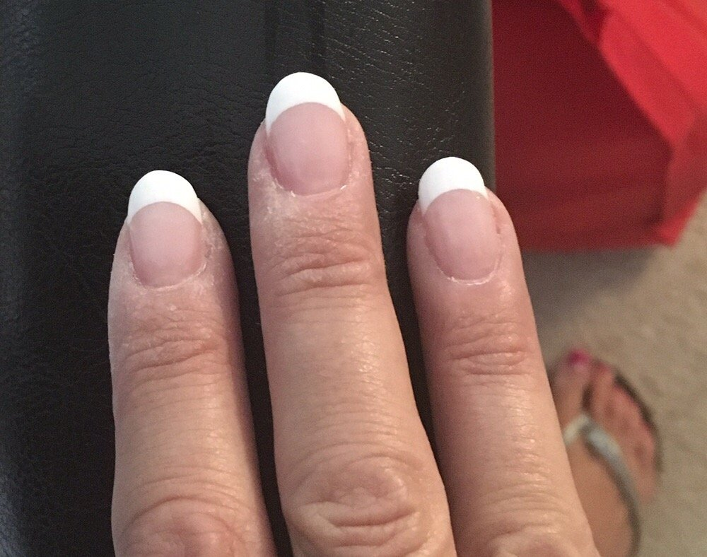 Waste of money uneven ripped skin - Yelp
