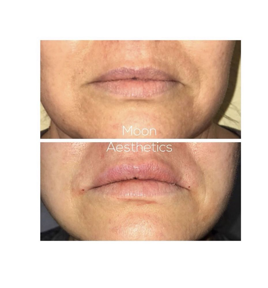 Before & after of lip treatment called LIP FLIP using PDO threads - Yelp