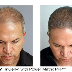Bosley Hair Restoration 47 Photos Hair Loss Centers 5215 N
