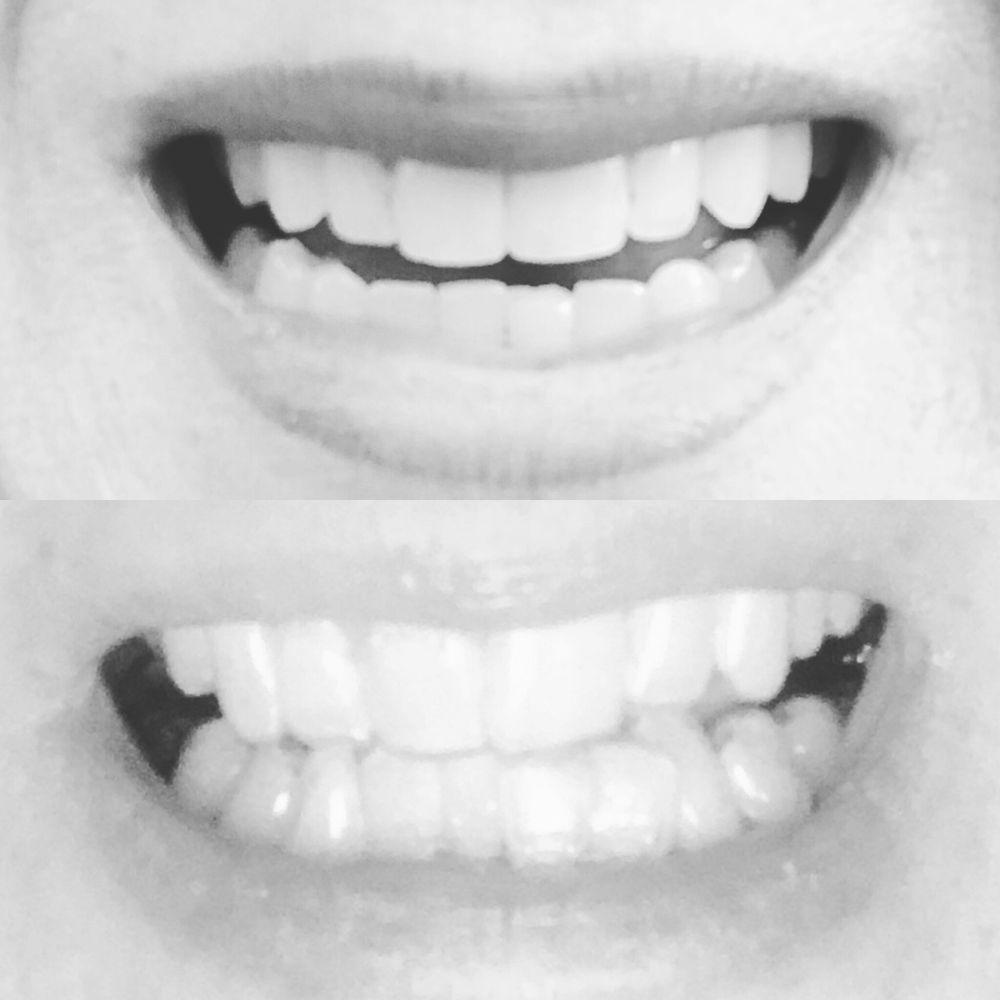 Simply mgh facial pain clinic very