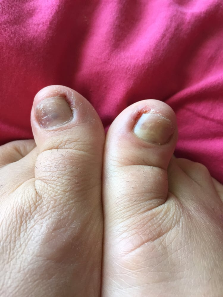 Yes, after having my toes done while asleep, nails too long, removed ...