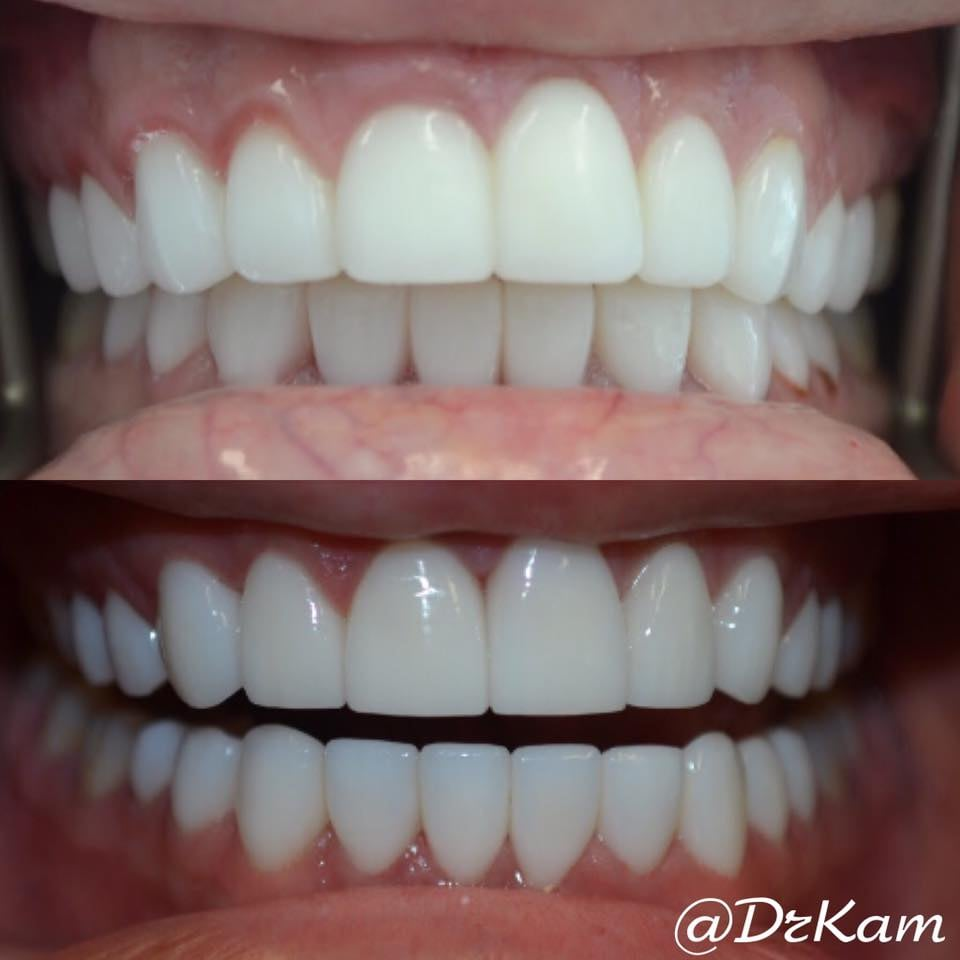 perfect smile veneers реальные