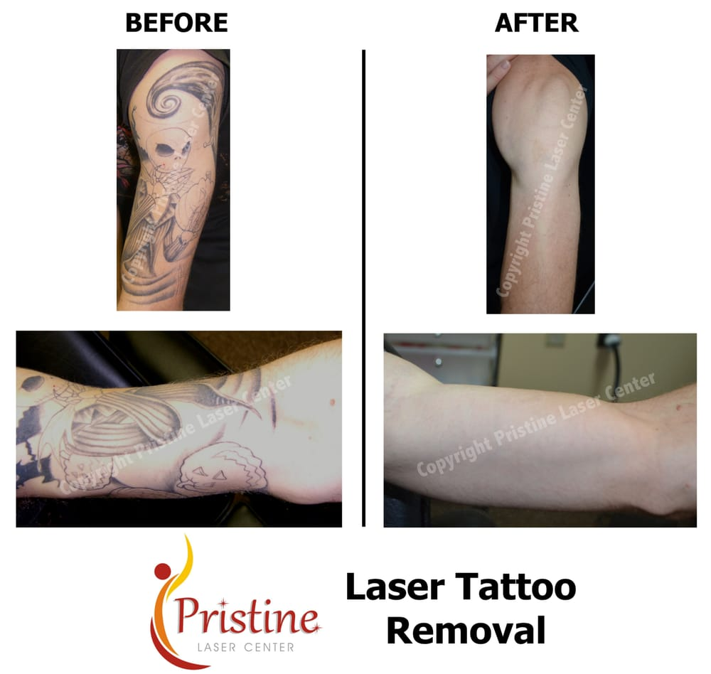 Half-sleeve Tattoo Removal - Yelp