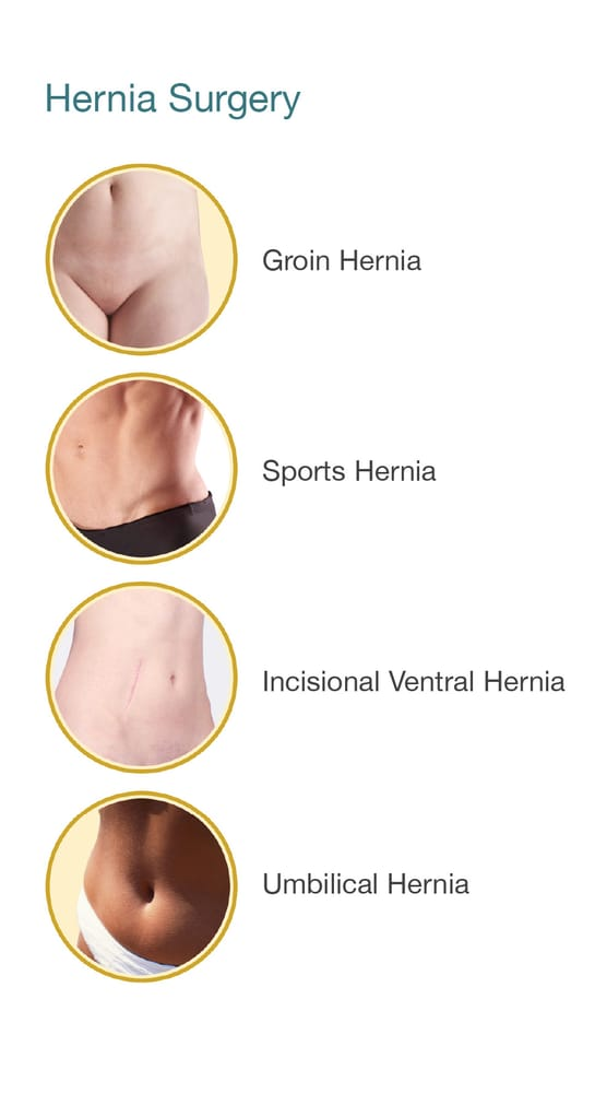 Repair Of Inguinal Groin Umbilical Belly Button Hiatal