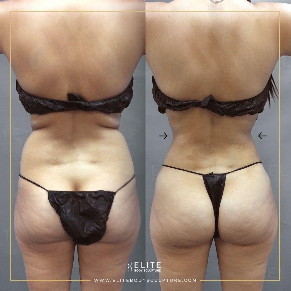 Elite Body Sculpture - Dallas: 8144 Walnut Hill Ln, Dallas, TX