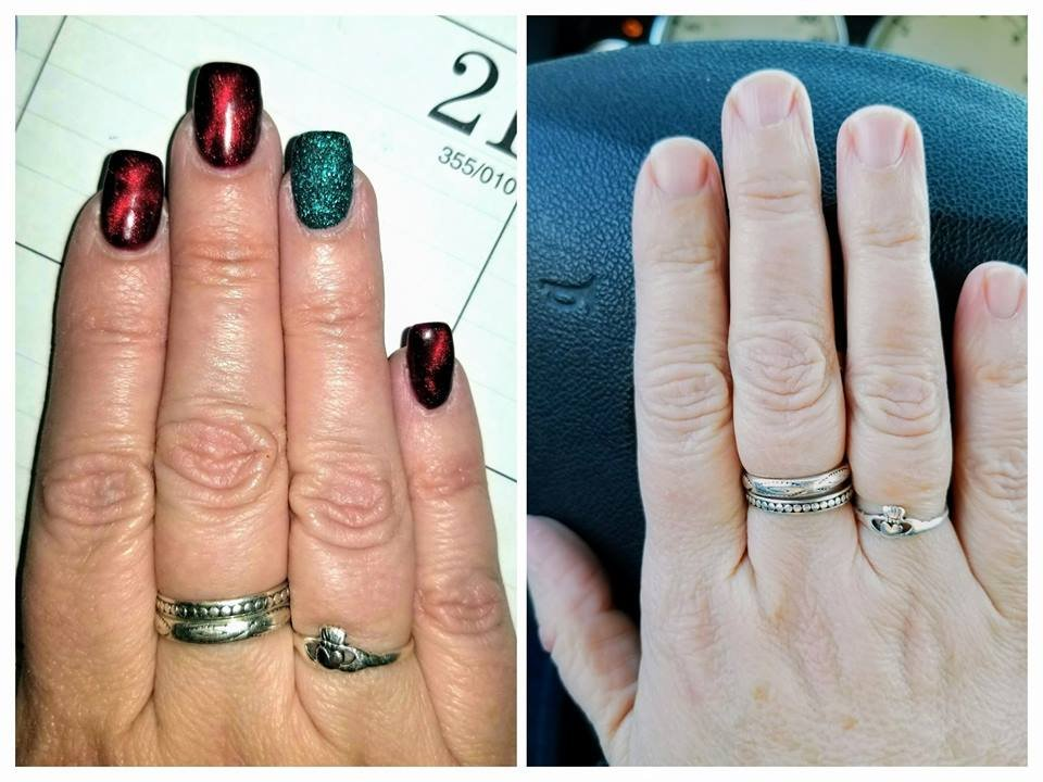 December 2017 - Before (R) and After (L) My gorgeous Christmas nails ...