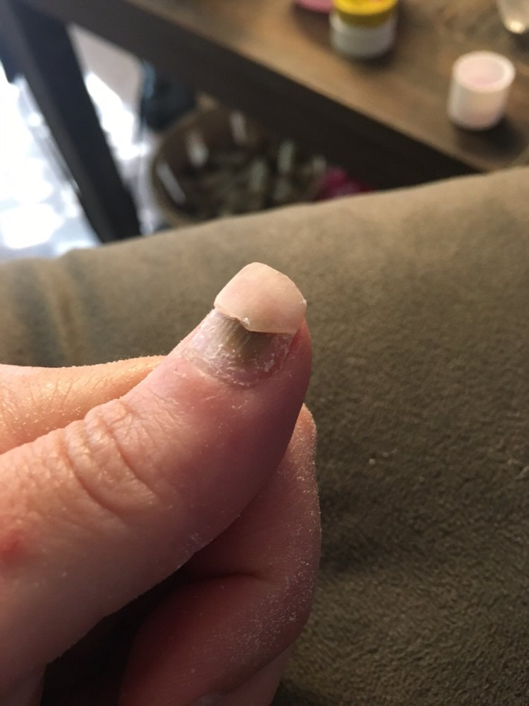 Nail fungus from this salon - Yelp