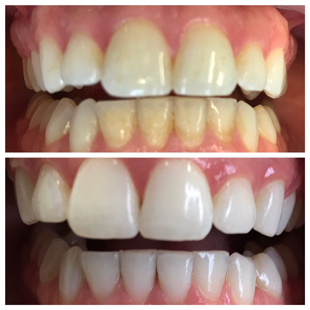 Wedding White Teeth: One Round Of Cleaning And Teeth Whitening..and She Is
