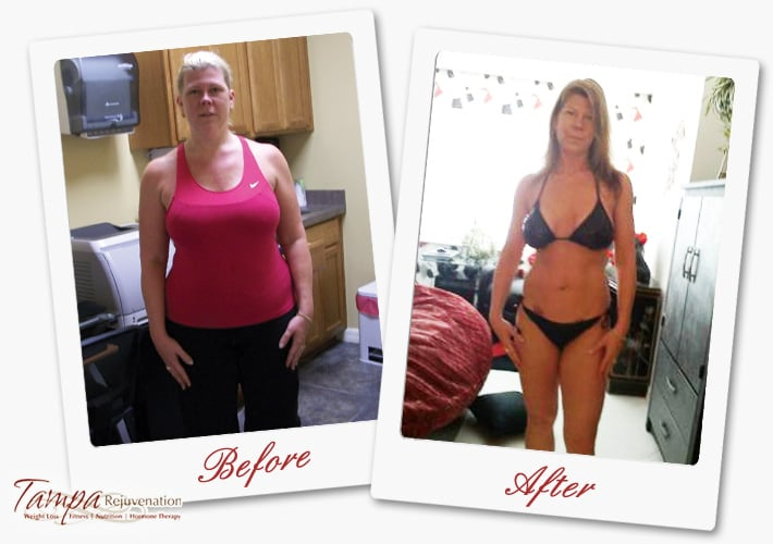tampa rejuvenation weight loss reviews