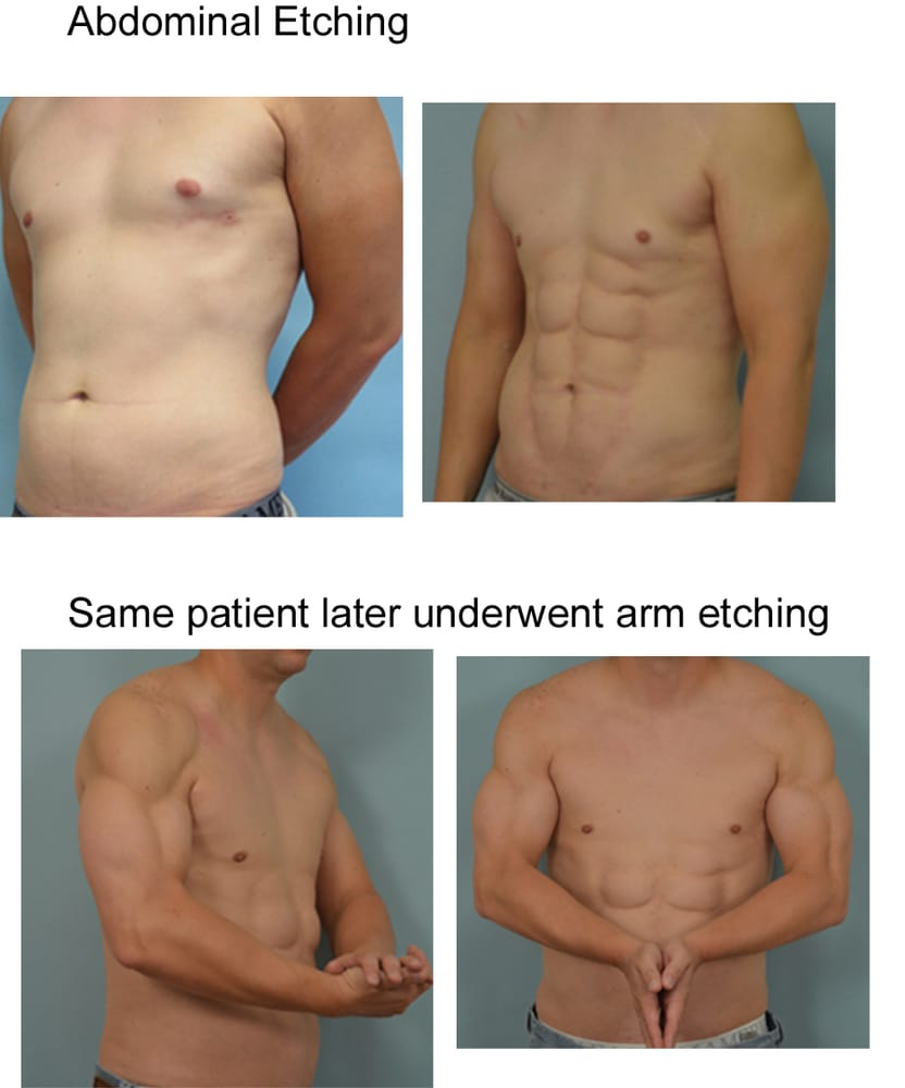 Abdominal etching and subsequent arm etching by Dr  Vladimir