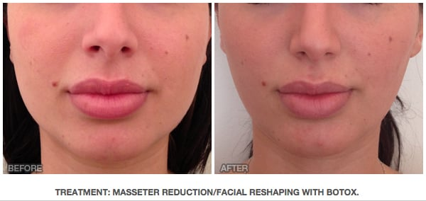Treatment Masseter Reduction Facial Reshaping With Botox