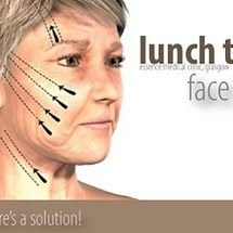 PDO Thread Lift - non-surgical facelift with Nova Threads in