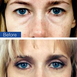 Weiss Cosmetic & Laser Procedures - 62 Photos & 42 Reviews