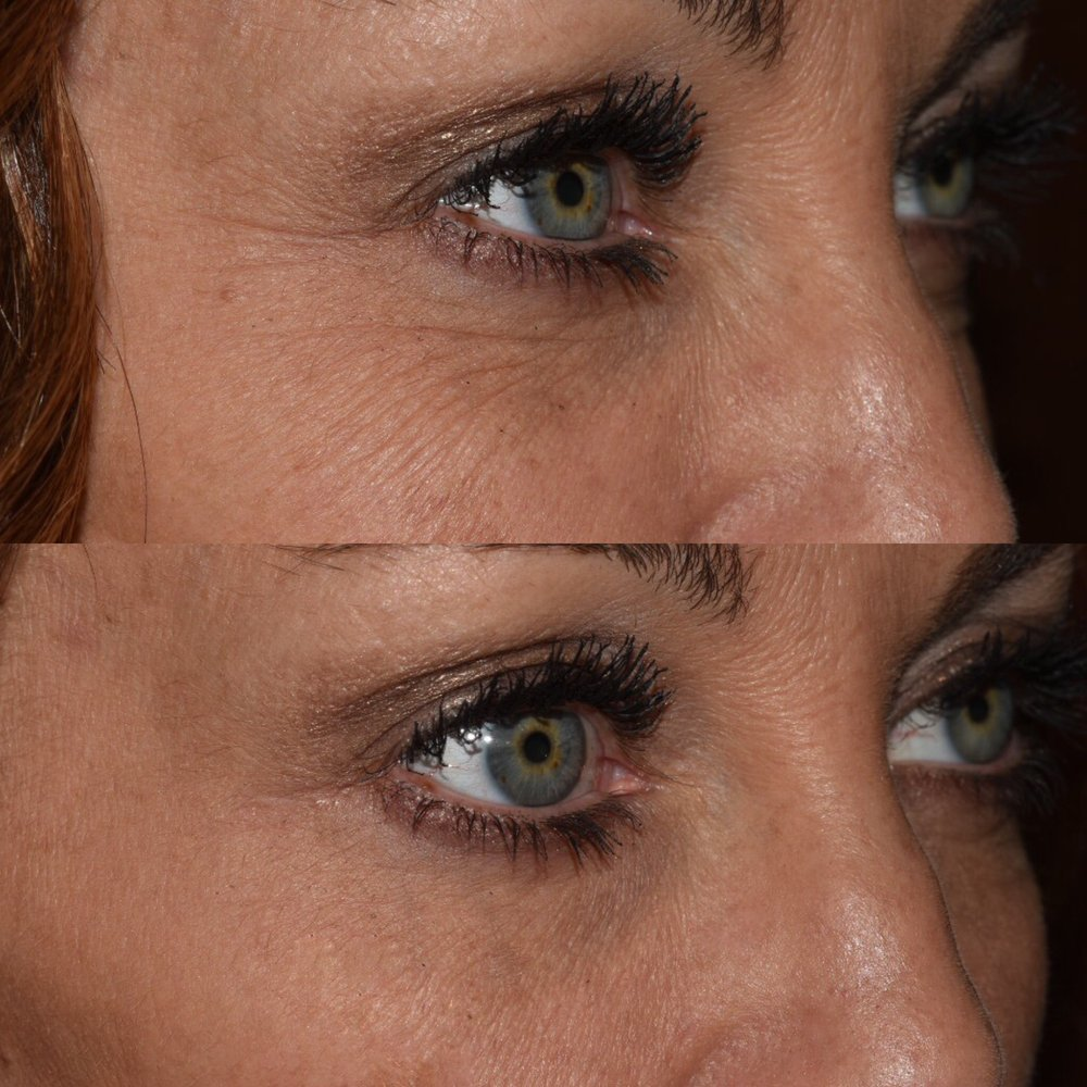 Before and after erbium laser resurfacing for wrinkles