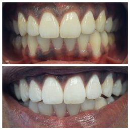 Pure white mobile teeth whitening