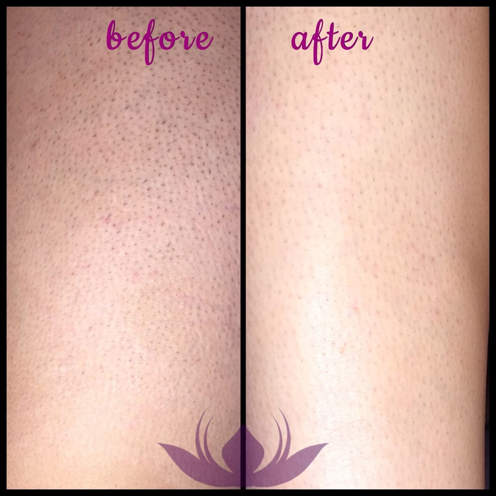 laser hair removal on legs are you bothered with dark