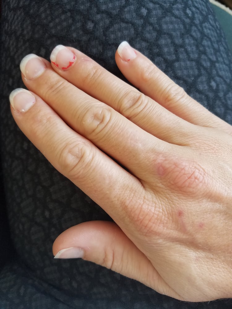 Gel manicure - no bond to the nail and sloppy application onto the ...