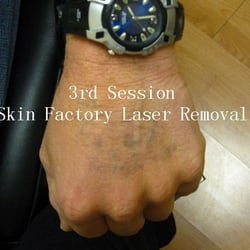 skin factory laser tattoo removal 77 photos 40 reviews