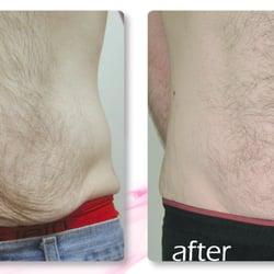 Xooma weight loss image 5