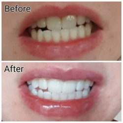 White smile tandblekningspenna