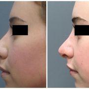 Yelp Reviews for DAVinci Plastic Surgery - 37 Photos & 24 Reviews