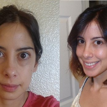 Facial plastic surgeons bonita springs fl thought
