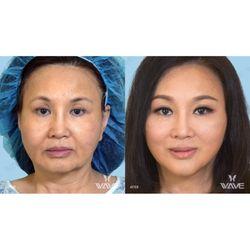 Wave Plastic Surgery & Laser Center - 189 Photos & 140 Reviews